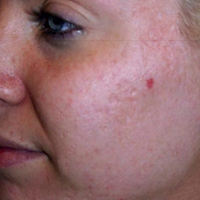 Acne behandeling_na