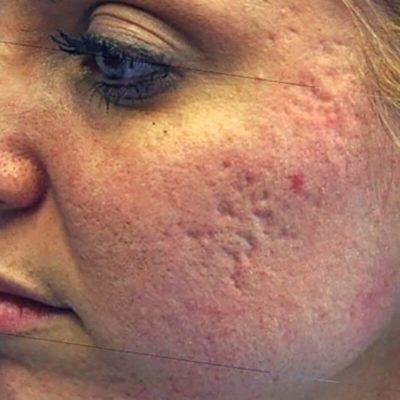 Acne behandeling_voor