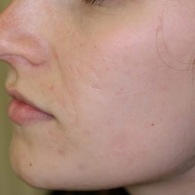 Acne littekens laseren_na
