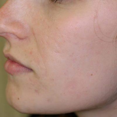 Acne littekens laseren_na