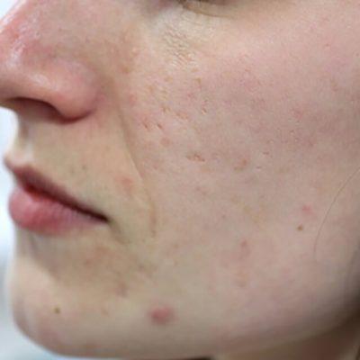 Acne littekens laseren_voor